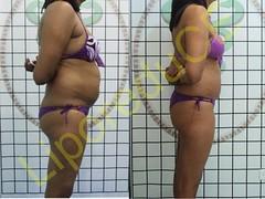 liporeduce-plussize-tratamento-curvy-medidas (12)