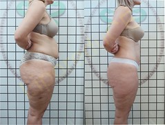 liporeduce-plussize-tratamento-curvy-medidas (8)