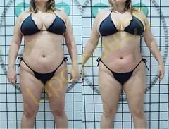 liporeduce-plussize-tratamento-curvy-medidas (6)
