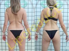 liporeduce-fitness-tratamento-gordura-medidas (24)