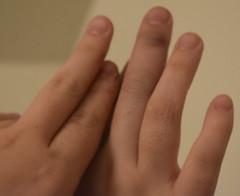 Sophia's Finger Injury - from Bailey (Pictures by Ann) Tags: sophia fingerinjury brokenbone finger swollen bruised