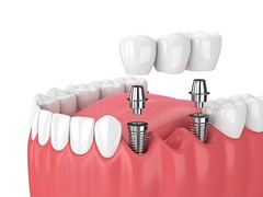 dental implants Los Angeles (westlaimplants) Tags: dental implants los angeles