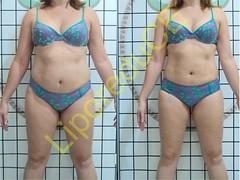 liporeduce-plussize-tratamento-reducao-medidas (21)