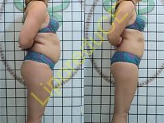 liporeduce-plussize-tratamento-reducao-medidas (4)