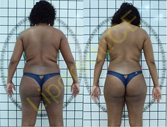 liporeduce-plussize-tratamento-curvy-medidas (26)