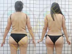 liporeduce-plussize-tratamento-curvy-medidas (25)