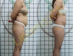 liporeduce-plussize-tratamento-curvy-medidas (23)