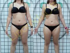 liporeduce-plussize-tratamento-curvy-medidas (21)
