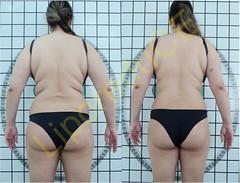 liporeduce-plussize-tratamento-curvy-medidas (19)