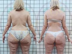 liporeduce-plussize-tratamento-curvy-medidas (14)