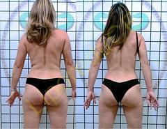 liporeduce-fitness-tratamento-gordura-medidas (3)