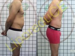 liporeduce-fitness-tratamento-gordura-medidas (26)