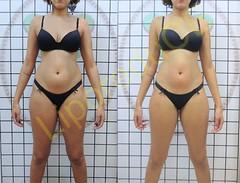 liporeduce-fitness-tratamento-gordura-medidas (12)