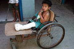 CAMBODIA144/ (Glenn Losack, M.D.) Tags: cambodia reap landmines siam phnom penh landminevictims streetphotographer siamreapcambodia peoplewithdeformities landminerehabilitationcenter glosack