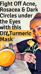 Fight Off Acne, Rosacea & Dark Circles under the Eyes with this DIY Turmeric Mask (healthylife2) Tags: fightoffacne rosaceadarkcirclesundertheeyeswiththisdiyturmericmask