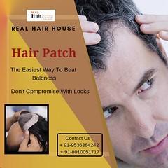 Non Surgical Hair Replacement (sharma245.lokesh) Tags: non surgical hair replacement