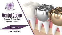 Effective Restorative Treatment for Tooth Damage (Parkshore Dentistry) Tags: dentalcrowns dentalcrown crown toothcrowns dentist dentalcap metalcrowns porcelaincrowns dentalcare dentistry cosmeticdentistry cosmeticdentist