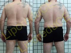 liporeduce-plussize-tratamento-reducao-medidas (32)