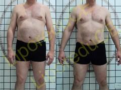 liporeduce-plussize-tratamento-reducao-medidas (20)