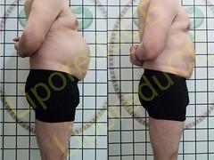 liporeduce-plussize-tratamento-reducao-medidas (15)