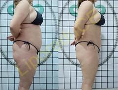 liporeduce-plussize-tratamento-curvy-medidas (20)