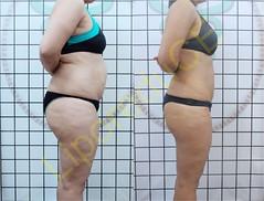 liporeduce-plussize-tratamento-curvy-medidas (10)