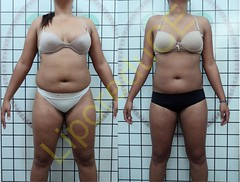 liporeduce-plussize-tratamento-curvy-medidas (4)