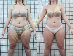 liporeduce-plussize-tratamento-curvy-medidas (2)