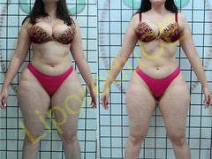 liporeduce-plussize-tratamento-curvy-medidas (1)