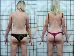 liporeduce-plussize-tratamento-curvy-medidas (30)
