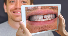 Dental Augmented Reality App (dr.kamihoss) Tags: dr kami hoss dental augmented