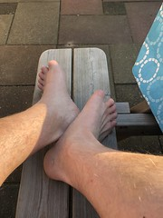 My short toes (fingertoeamputee) Tags: toeamputation fingeramputation