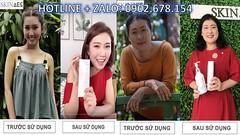 tắm trắng giá bao nhiêu tiền Skin AEC Zalo 0902 678 154 (tamtrangskinaec) Tags: tắm trắng giá bao nhiêu tiền skin aec zalo 0902 678 154