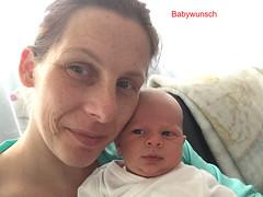 baby-Patientin