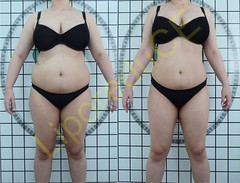 liporeduce-plussize-tratamento-curvy-medidas (33)