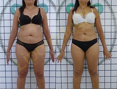 liporeduce-plussize-tratamento-curvy-medidas (27)