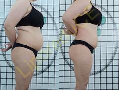 liporeduce-plussize-tratamento-curvy-medidas (24)