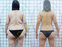 liporeduce-plussize-tratamento-curvy-medidas (15)