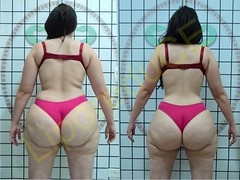 liporeduce-plussize-tratamento-curvy-medidas (13)