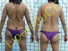 liporeduce-plussize-tratamento-curvy-medidas (9)