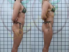liporeduce-fitness-tratamento-gordura-medidas (50)