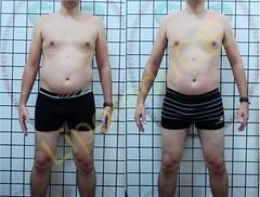 liporeduce-fitness-tratamento-gordura-medidas (47)