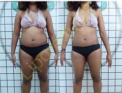 liporeduce-fitness-tratamento-gordura-medidas (33)