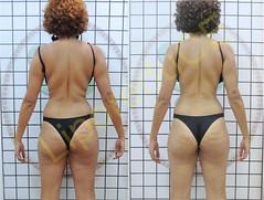 liporeduce-fitness-tratamento-gordura-medidas (14)