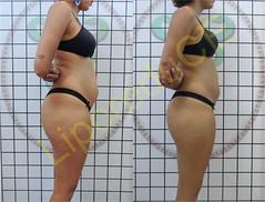 liporeduce-fitness-tratamento-gordura-medidas (13)
