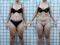 liporeduce-fitness-tratamento-gordura-medidas (9)