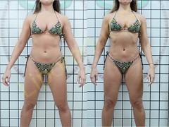 liporeduce-fitness-tratamento-gordura-medidas (7)
