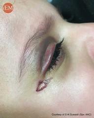 845 - 22 mo - accidental fell - eye pain (iem-student.org) Tags: eye trauma orbital fell echymosis