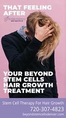 that-feeling1 (beyondstemcellsdenver) Tags: hair growth stem cells therapy balding bald baldness