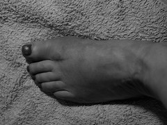 136/365 My left foot (KatyMag) Tags: foot surgery bunionsurgery scar toes hallux skin mono